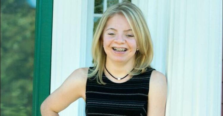 myFace patient Sara Pollak