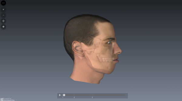 genioplasty-simulation-1